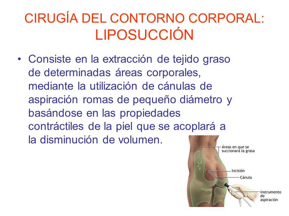 CIRUGÍA DEL CONTORNO CORPORAL: LIPOSUCCIÓN Consiste en la extracción de tejido graso de determinadas áreas corporales, mediante la utilización de cánu