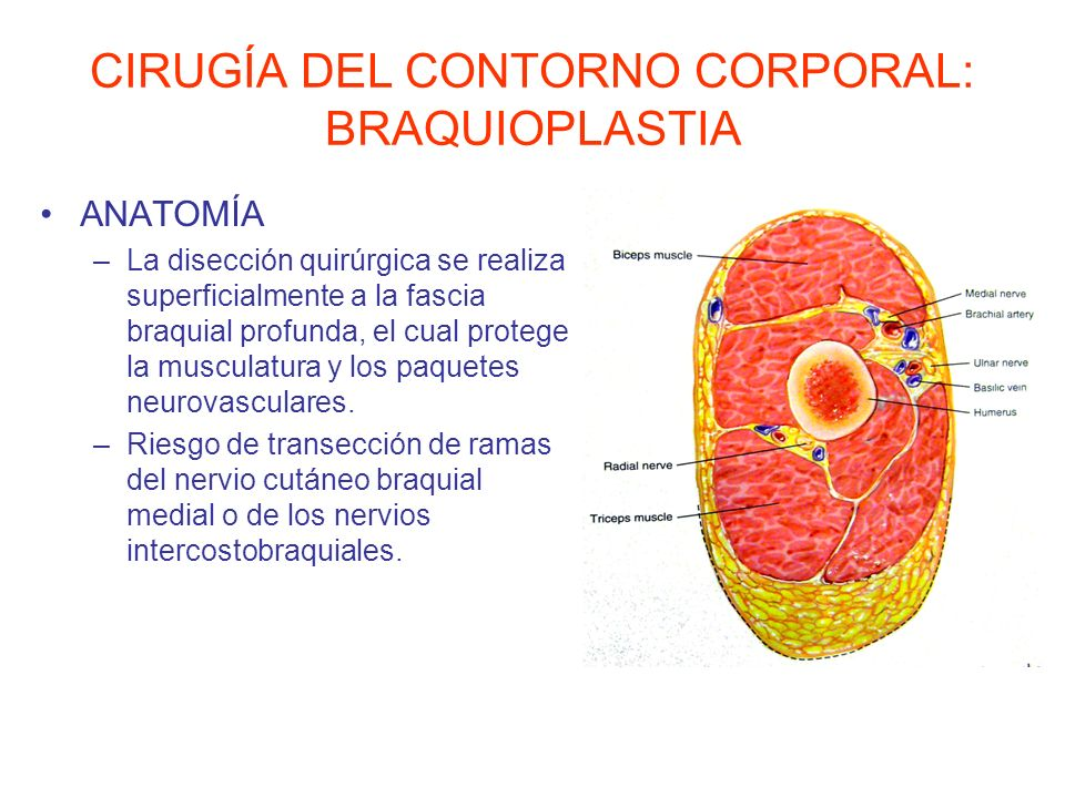 CIRUGÍA DEL CONTORNO CORPORAL: BRAQUIOPLASTIA ANATOMÍA –La disección quirúrgica se realiza superficialmente a la fascia braquial profunda, el cual pro