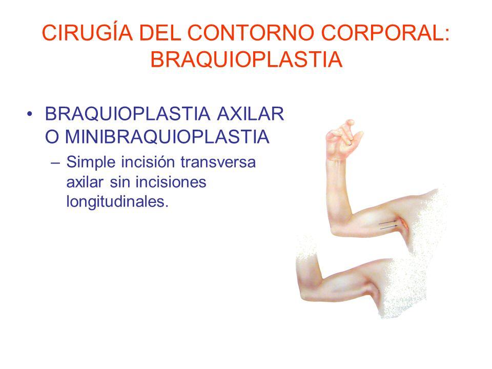 CIRUGÍA DEL CONTORNO CORPORAL: BRAQUIOPLASTIA BRAQUIOPLASTIA AXILAR O MINIBRAQUIOPLASTIA –Simple incisión transversa axilar sin incisiones longitudina