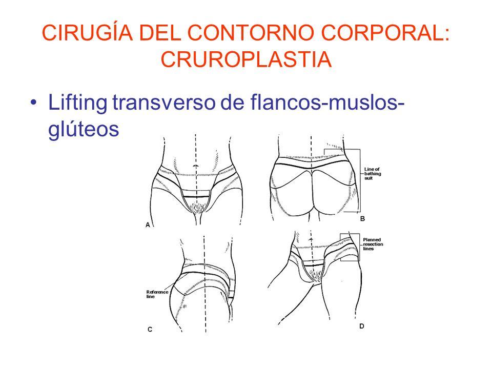 CIRUGÍA DEL CONTORNO CORPORAL: CRUROPLASTIA Lifting transverso de flancos-muslos- glúteos