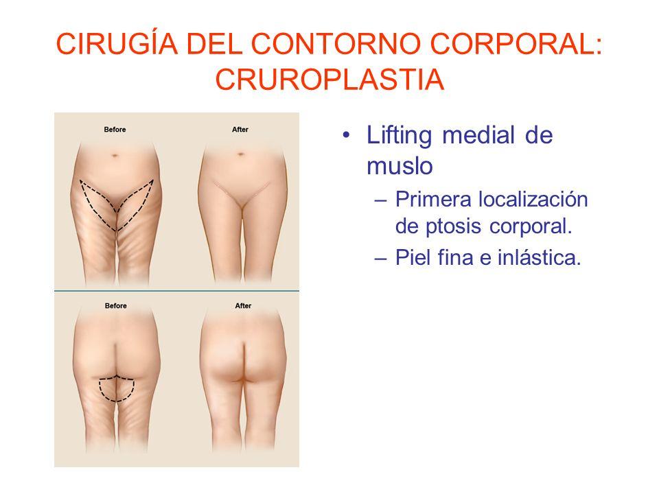 CIRUGÍA DEL CONTORNO CORPORAL: CRUROPLASTIA Lifting medial de muslo –Primera localización de ptosis corporal. –Piel fina e inlástica.