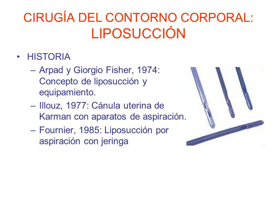 CIRUGÍA DEL CONTORNO CORPORAL: LIPOSUCCIÓN HISTORIA –Arpad y Giorgio Fisher, 1974: Concepto de liposucción y equipamiento. –Illouz, 1977: Cánula uteri