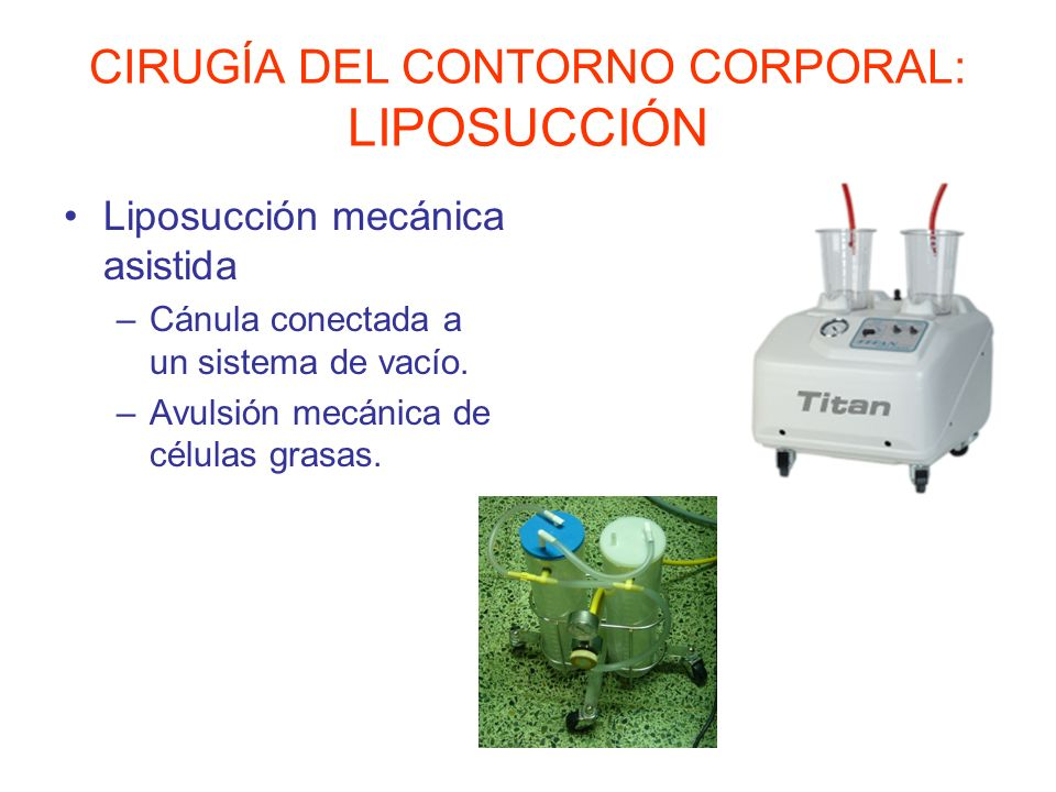 CIRUGÍA DEL CONTORNO CORPORAL: LIPOSUCCIÓN Liposucción mecánica asistida –Cánula conectada a un sistema de vacío. –Avulsión mecánica de células grasas