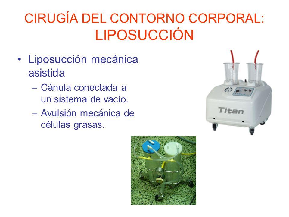 CIRUGÍA DEL CONTORNO CORPORAL: LIPOSUCCIÓN Liposucción vibratoria –Sistema neumático o mecánico que genera un movimiento vibratorio.