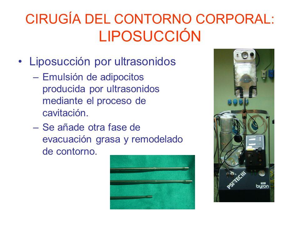CIRUGÍA DEL CONTORNO CORPORAL: LIPOSUCCIÓN Liposucción por láser –Fibra de láser que provoca lisis celular mediante licuefacción.