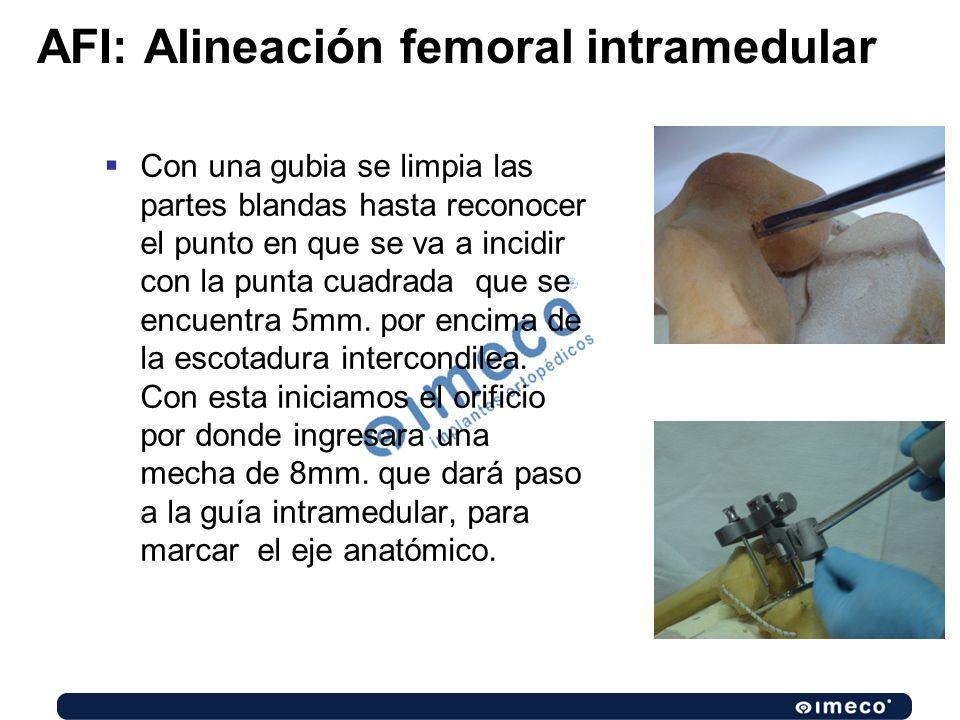 AFI: Alineación femoral intramedular Con una gubia se limpia las partes blandas hasta reconocer el punto en que se va a incidir con la punta cuadrada