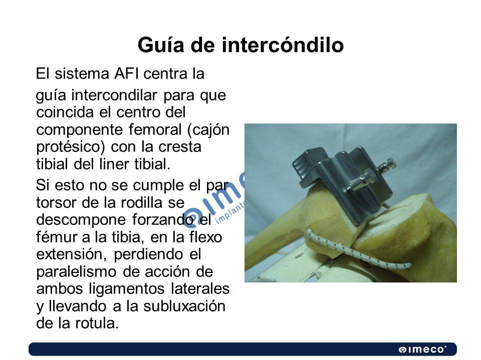 Guía de intercóndilo El sistema AFI centra la guía intercondilar para que coincida el centro del componente femoral (cajón protésico) con la cresta ti