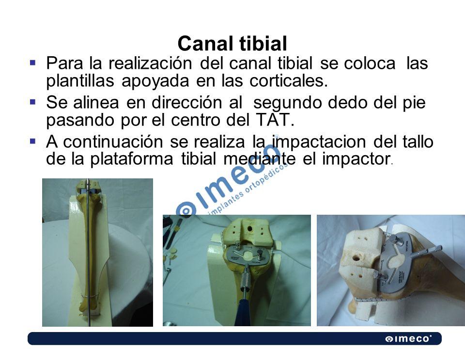 Canal tibial Para la realización del canal tibial se coloca las plantillas apoyada en las corticales. Se alinea en dirección al segundo dedo del pie p