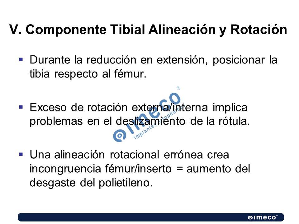 V. Componente Tibial Alineación y Rotación Durante la reducción en extensión, posicionar la tibia respecto al fémur. Exceso de rotación externa/intern