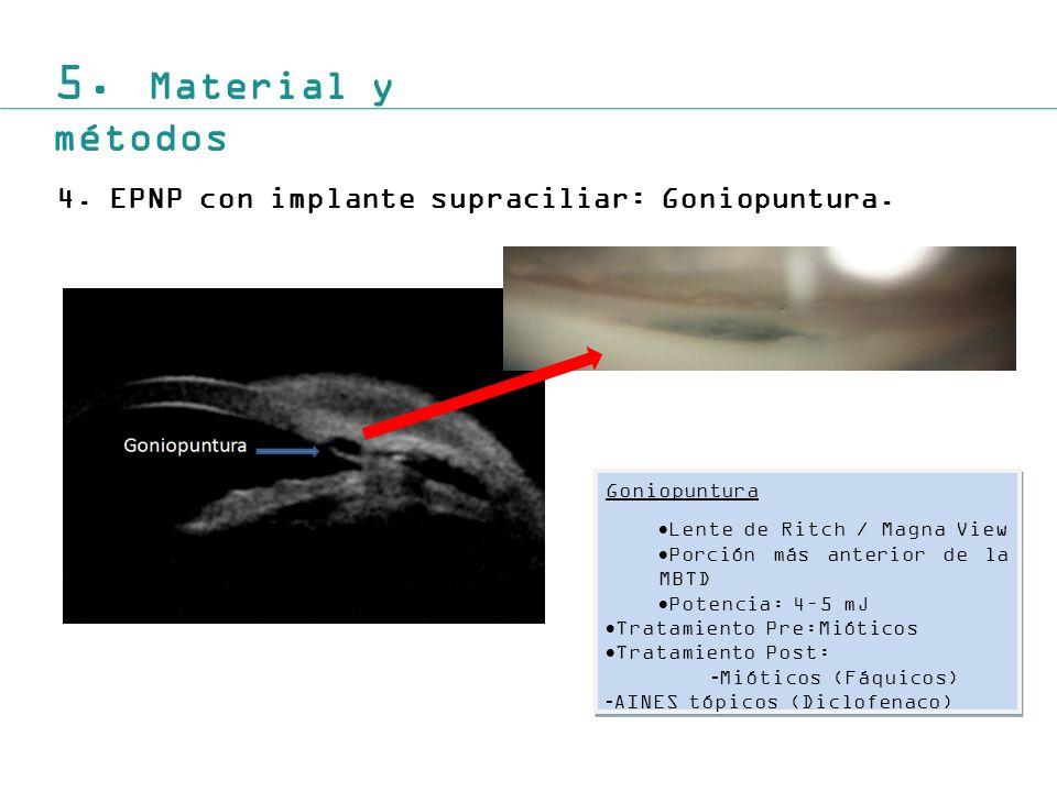 5.Material y métodos 4.EPNP con implante supraciliar: Goniopuntura.