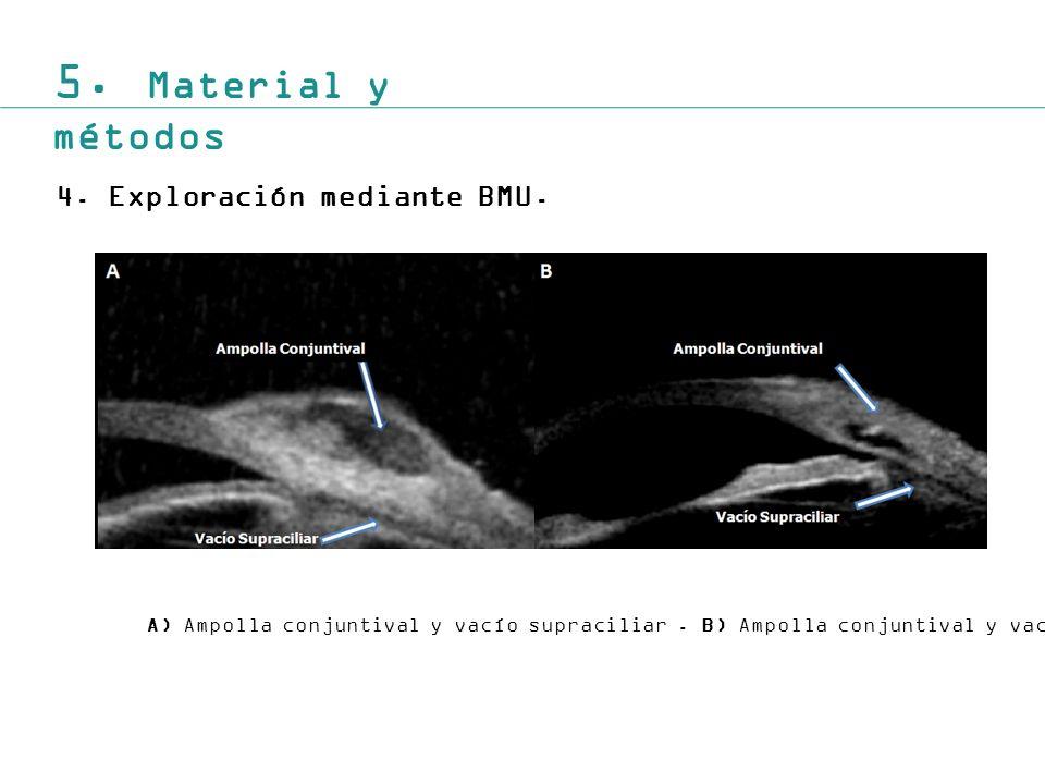 5.Material y métodos 4.Exploración mediante BMU. A) Ampolla conjuntival y vacío supraciliar.