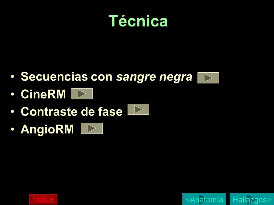 Técnica Secuencias con sangre negra CineRM Contraste de fase AngioRM Hallazgos> Índice <Anatomía
