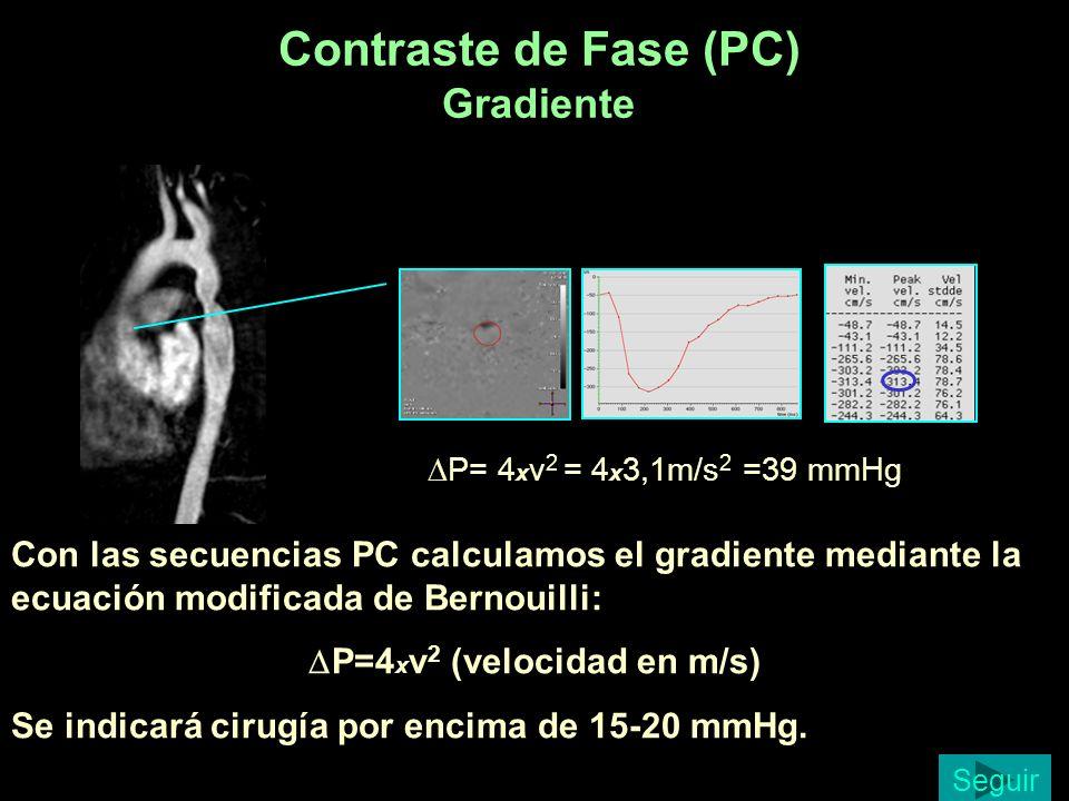 Contraste de Fase (PC) Gradiente P= 4 x v 2 = 4 x 3,1m/s 2 =39 mmHg Con las secuencias PC calculamos el gradiente mediante la ecuación modificada de B