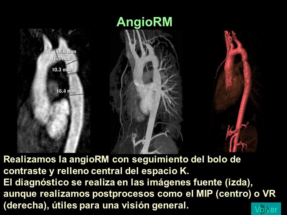 AngioRM Realizamos la angioRM con seguimiento del bolo de contraste y relleno central del espacio K. El diagnóstico se realiza en las imágenes fuente