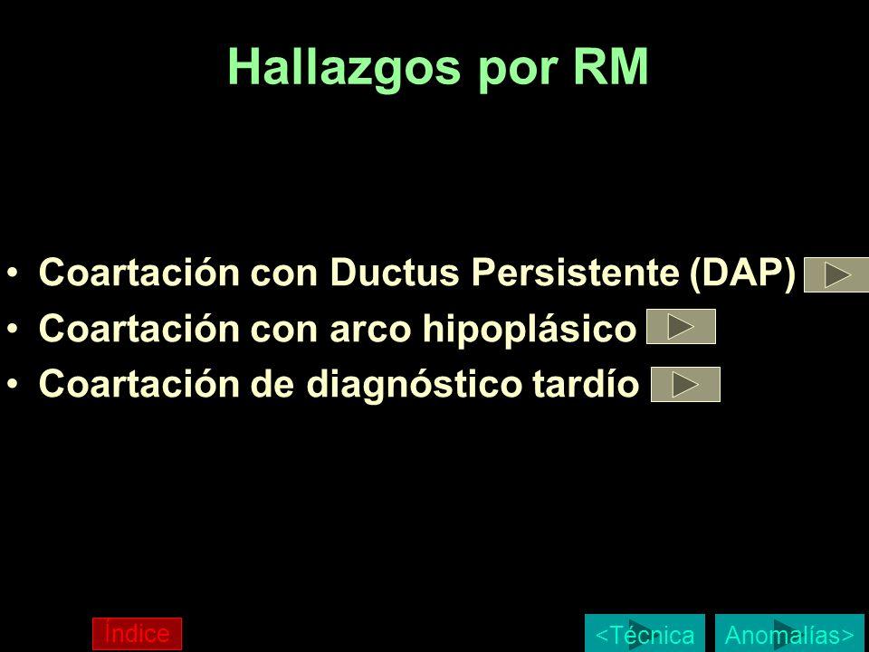 Hallazgos por RM Coartación con Ductus Persistente (DAP) Coartación con arco hipoplásico Coartación de diagnóstico tardío Anomalías> Índice <Técnica