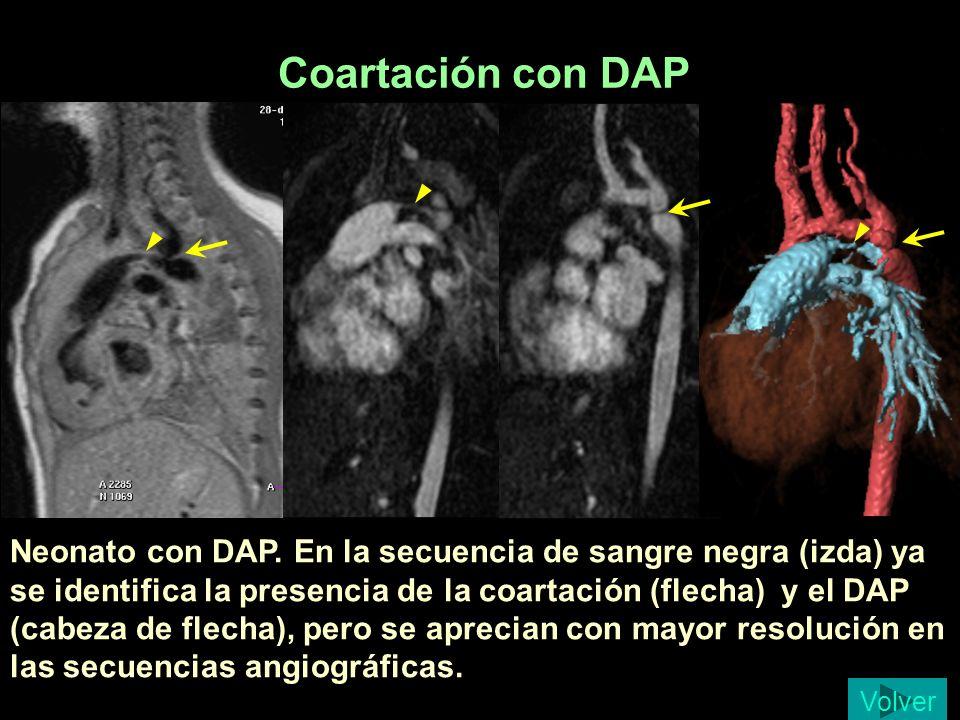 Coartación con DAP Neonato con DAP. En la secuencia de sangre negra (izda) ya se identifica la presencia de la coartación (flecha) y el DAP (cabeza de
