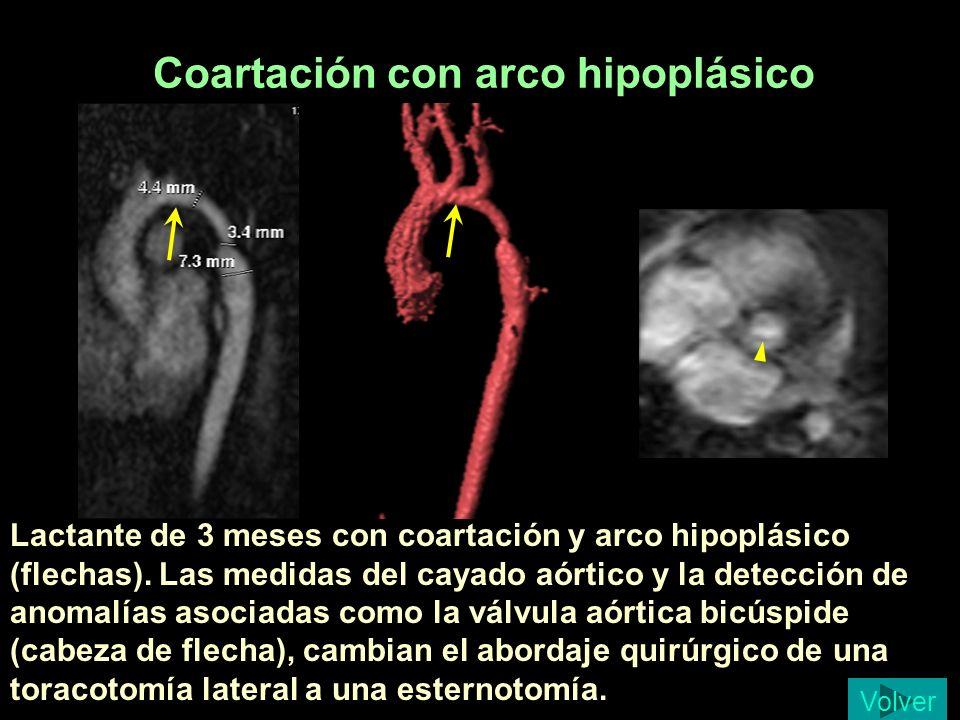 Coartación con arco hipoplásico Lactante de 3 meses con coartación y arco hipoplásico (flechas). Las medidas del cayado aórtico y la detección de anom