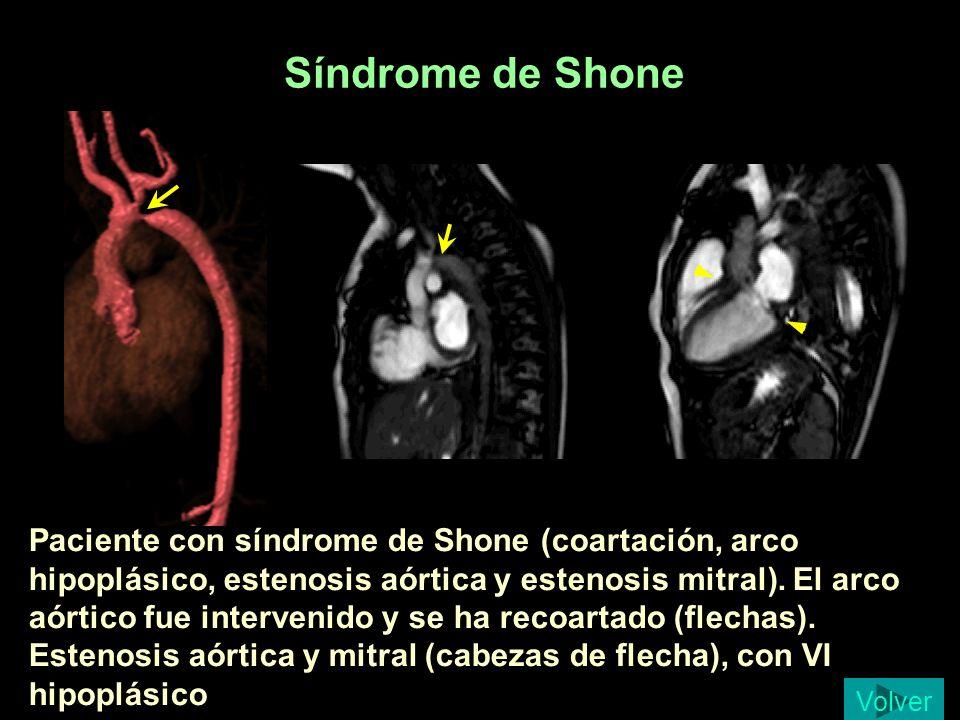 Síndrome de Shone Paciente con síndrome de Shone (coartación, arco hipoplásico, estenosis aórtica y estenosis mitral). El arco aórtico fue intervenido