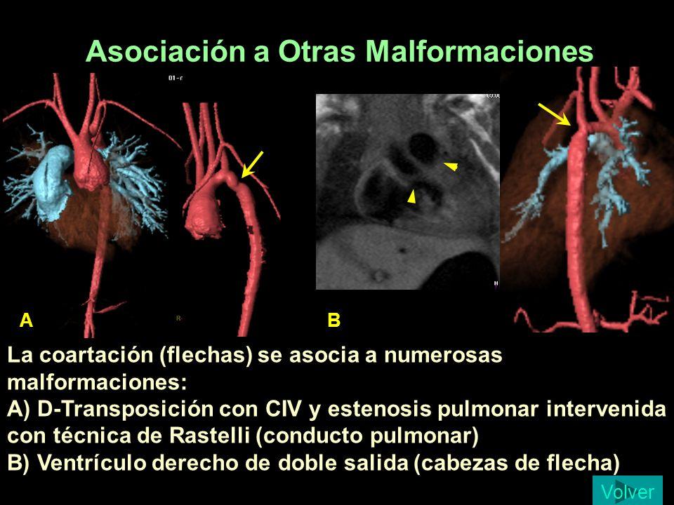 Asociación a Otras Malformaciones A B La coartación (flechas) se asocia a numerosas malformaciones: A) D-Transposición con CIV y estenosis pulmonar in