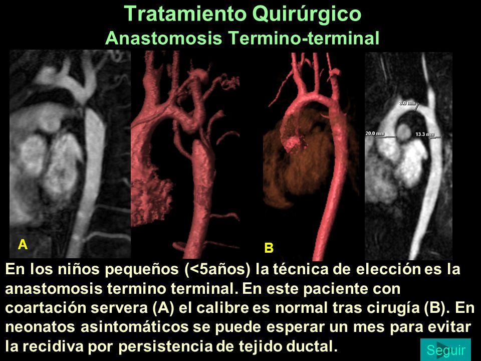 Tratamiento Quirúrgico Anastomosis Termino-terminal En los niños pequeños (<5años) la técnica de elección es la anastomosis termino terminal. En este