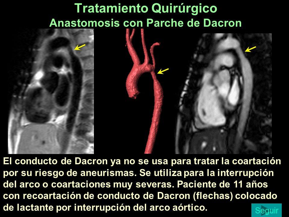 Tratamiento Quirúrgico Anastomosis con Parche de Dacron El conducto de Dacron ya no se usa para tratar la coartación por su riesgo de aneurismas. Se u