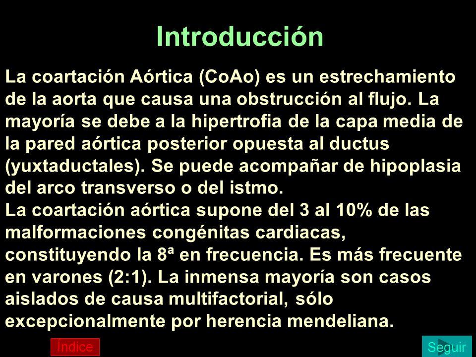 Introducción La coartación Aórtica (CoAo) es un estrechamiento de la aorta que causa una obstrucción al flujo. La mayoría se debe a la hipertrofia de