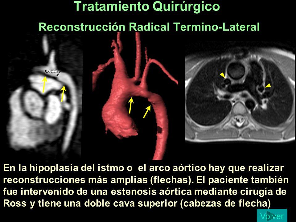 En la hipoplasia del istmo o el arco aórtico hay que realizar reconstrucciones más amplias (flechas). El paciente también fue intervenido de una esten