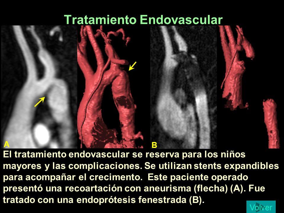 Tratamiento Endovascular El tratamiento endovascular se reserva para los niños mayores y las complicaciones. Se utilizan stents expandibles para acomp