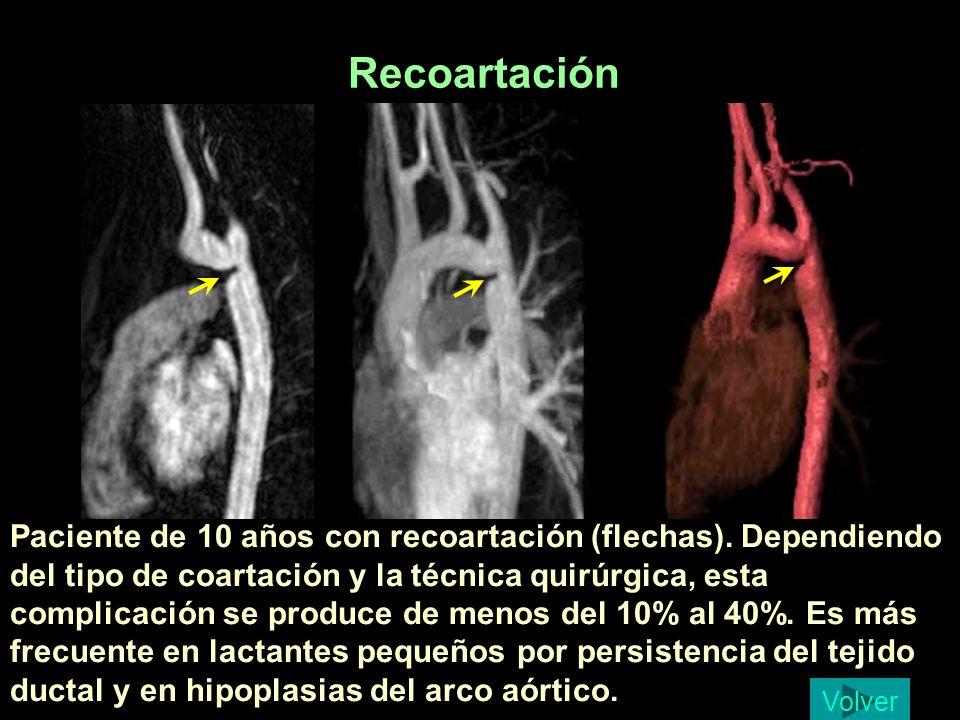 Paciente de 10 años con recoartación (flechas). Dependiendo del tipo de coartación y la técnica quirúrgica, esta complicación se produce de menos del