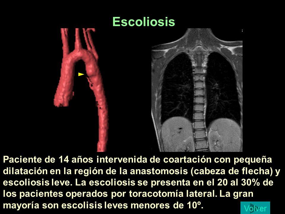 Paciente de 14 años intervenida de coartación con pequeña dilatación en la región de la anastomosis (cabeza de flecha) y escoliosis leve. La escoliosi
