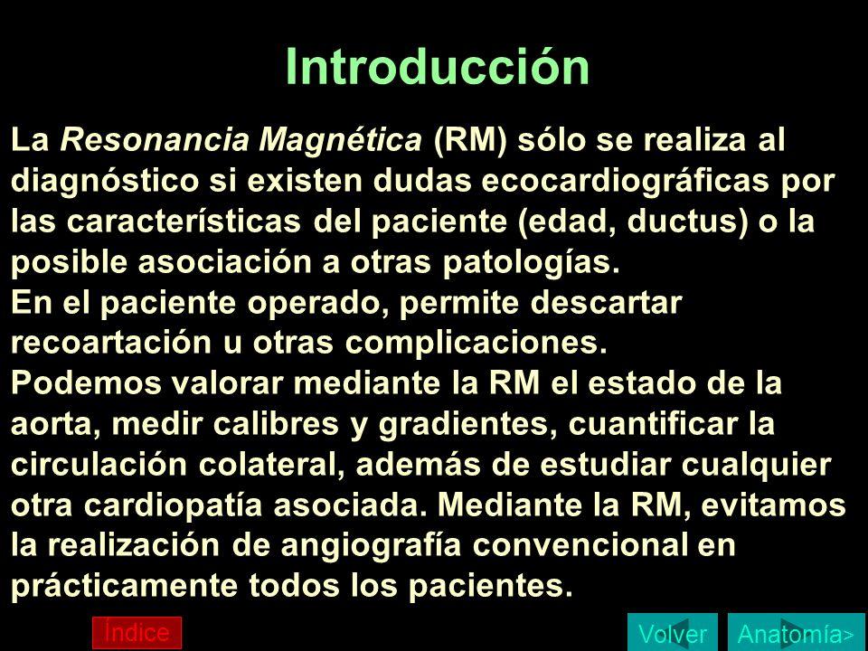 Introducción La Resonancia Magnética (RM) sólo se realiza al diagnóstico si existen dudas ecocardiográficas por las características del paciente (edad