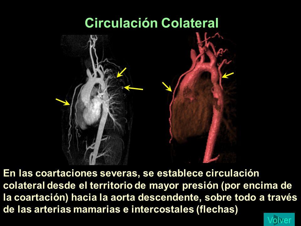 Circulación Colateral En las coartaciones severas, se establece circulación colateral desde el territorio de mayor presión (por encima de la coartació