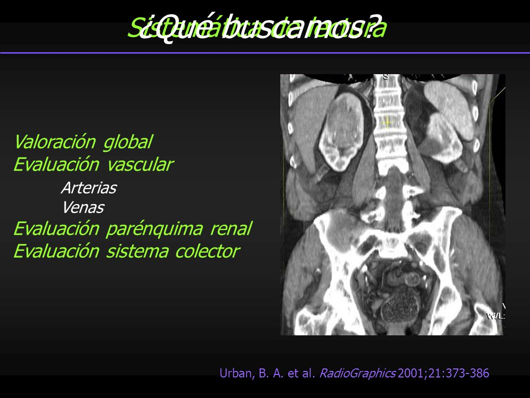 Sistemática de lectura Valoración global Evaluación vascular Arterias Venas Evaluación parénquima renal Evaluación sistema colector Urban, B. A. et al