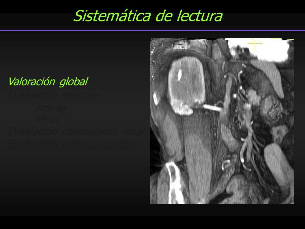 Sistemática de lectura Valoración global Evaluación vascular Arterias Venas Evaluación parénquima renal Evaluación sistema colector