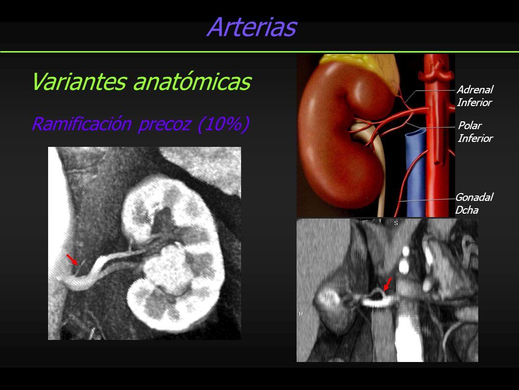 Arterias Adrenal Inferior Gonadal Dcha Polar Inferior Ramificación precoz (10%) Variantes anatómicas
