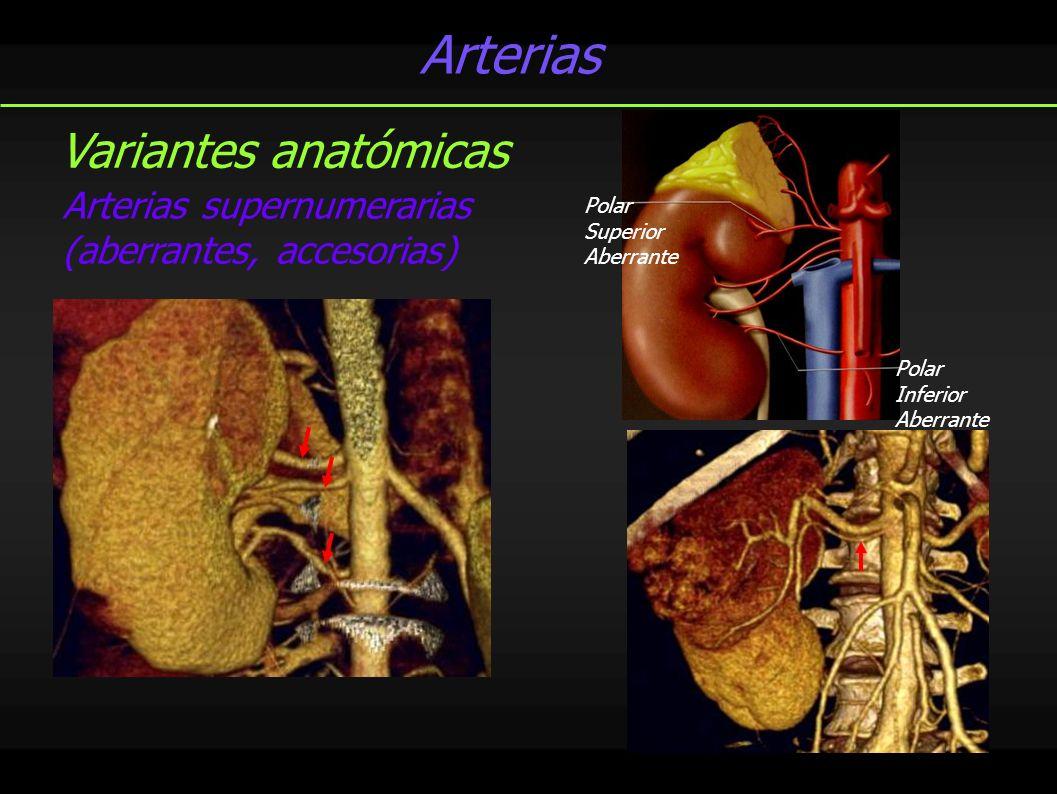 Venas 85% vena renal única bilateral Variantes anatómicas VRI circunaórtica VRI retroaórtica Confluencia extrarrenal Tributarias sistémicas a la VRI Venas gonadales Venas adrenales Venas lumbares Evaluación vascular Fase nefrográfica