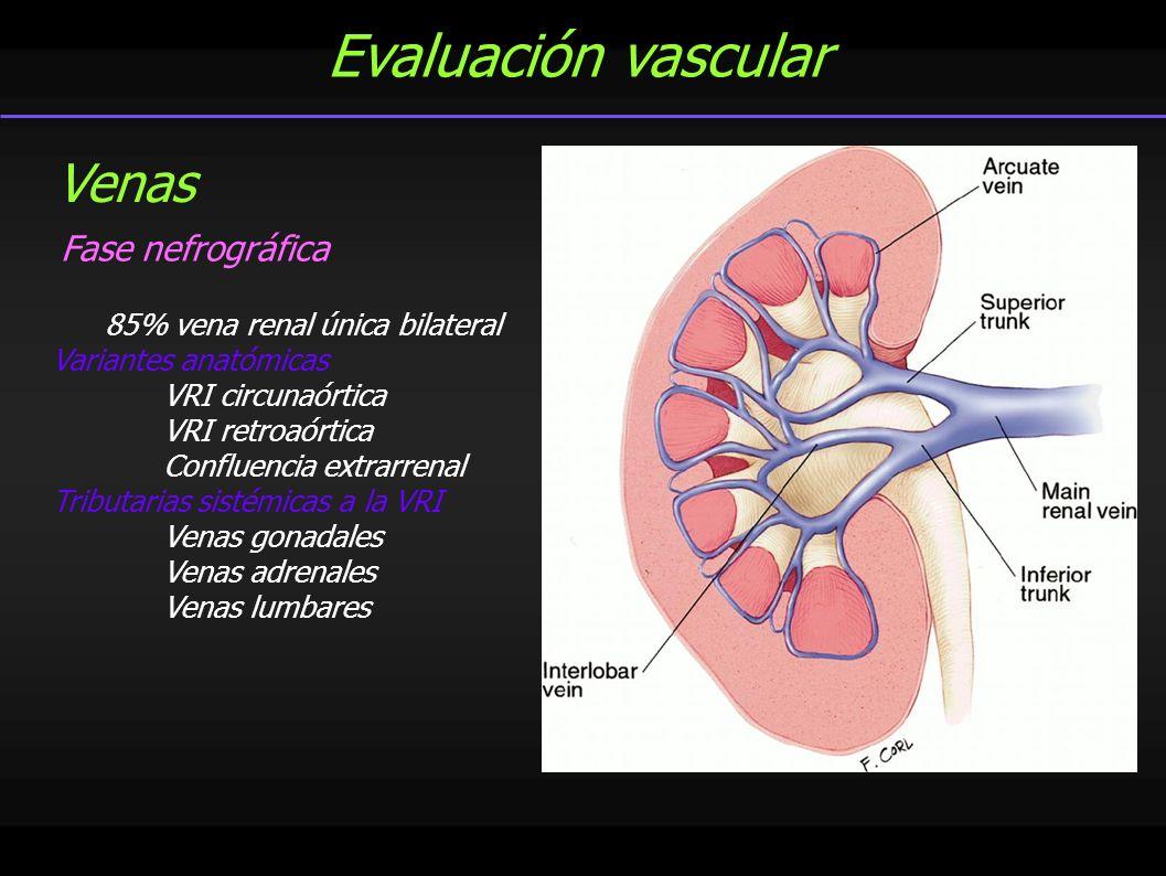 Venas 85% vena renal única bilateral Variantes anatómicas VRI circunaórtica VRI retroaórtica Confluencia extrarrenal Tributarias sistémicas a la VRI V