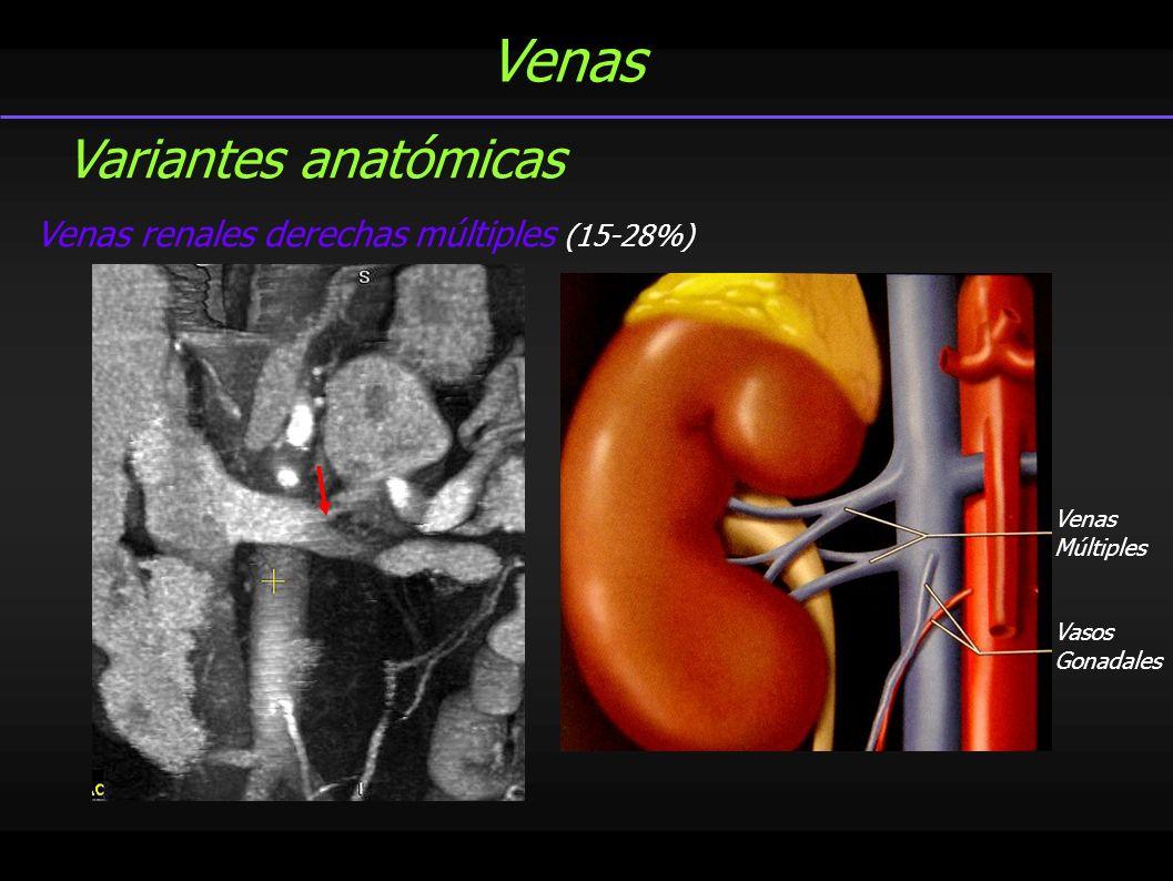 Venas Vena renal izquierda circunaórtica- 8-17% Vena renal izquierda retroaórtica- 3% Variantes anatómicas Rama preaórtica Rama retroaórtica