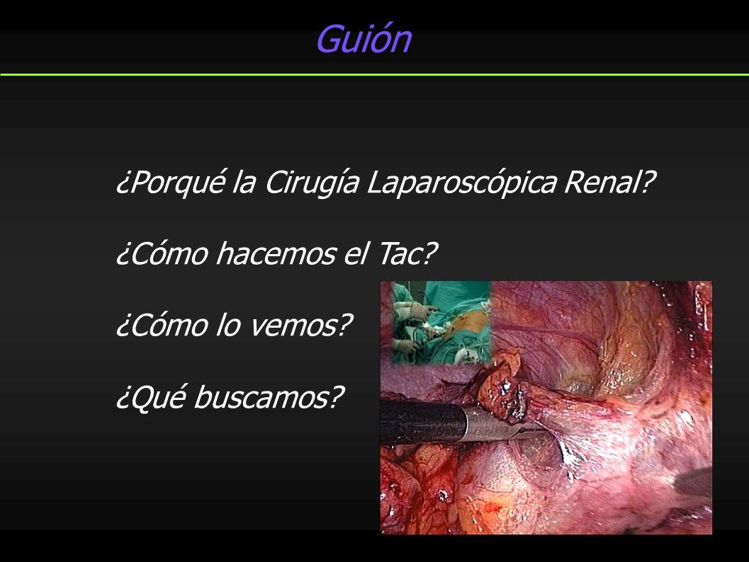 ¿Porqué la Cirugía Laparoscópica Renal? ¿Cómo hacemos el Tac? ¿Cómo lo vemos? ¿Qué buscamos? Guión