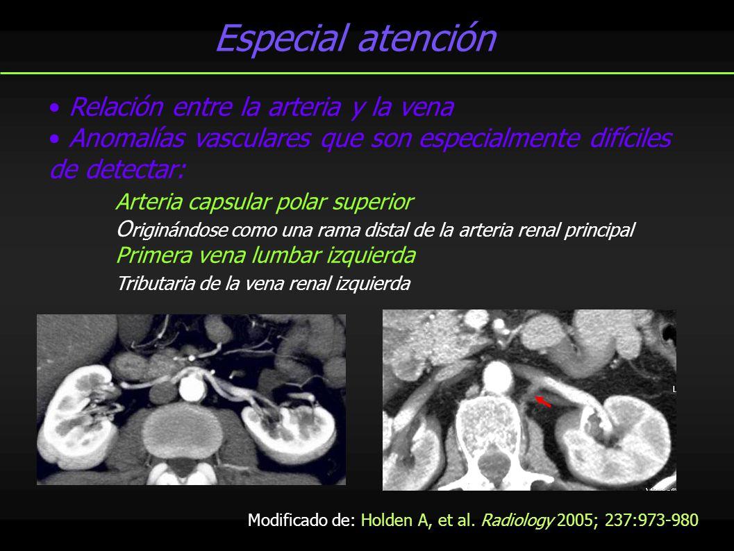 Especial atención Relación entre la arteria y la vena Anomalías vasculares que son especialmente difíciles de detectar: Arteria capsular polar superio