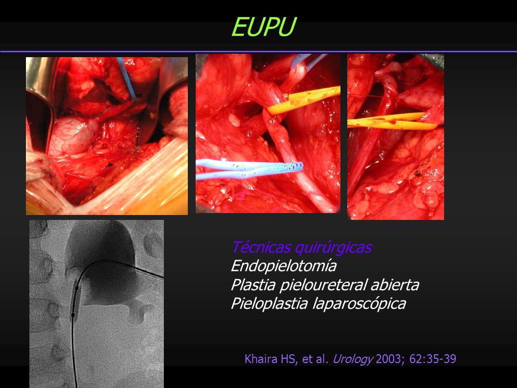 EUPU Khaira HS, et al. Urology 2003; 62:35-39 Técnicas quirúrgicas Endopielotomía Plastia pieloureteral abierta Pieloplastia laparoscópica