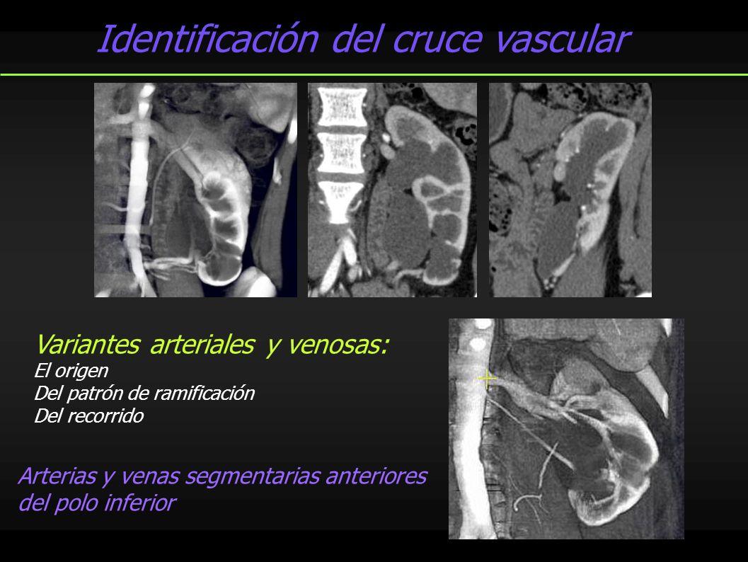 Identificación del cruce vascular Variantes arteriales y venosas: El origen Del patrón de ramificación Del recorrido Arterias y venas segmentarias ant