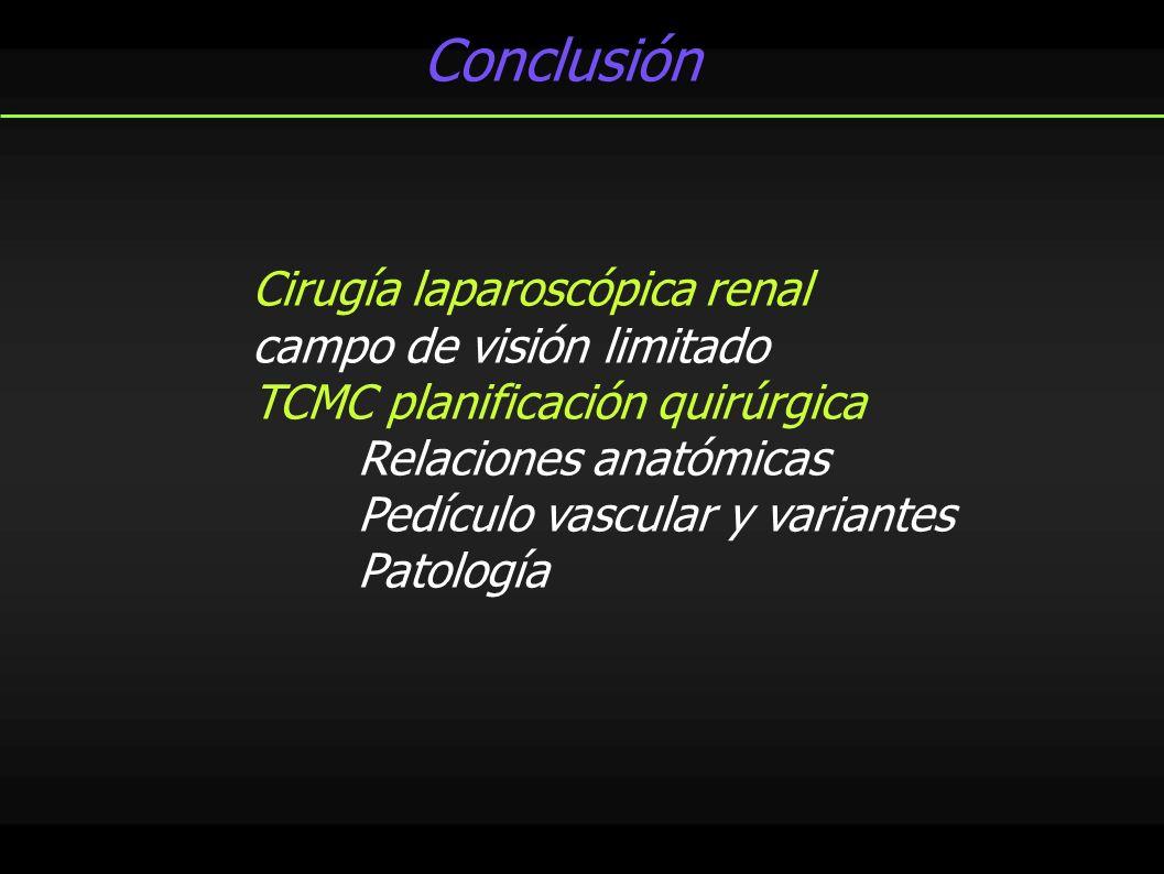 Conclusión Cirugía laparoscópica renal campo de visión limitado TCMC planificación quirúrgica Relaciones anatómicas Pedículo vascular y variantes Pato