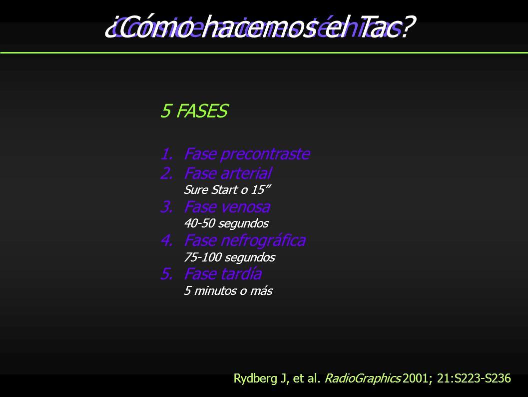 Evaluación renal en tres fases 1º precontraste Adquisición 4x3; colimación 6mm; intervalo 6mm 0,5 s tiempo rotación 80-120 Kv; 50-150 mAs Adecuación de la corriente del tubo 2º fase arterial Adquisición 4x1; colimación 1mm; intervalo 0,5mm 0.5 s tiempo rotación 80-120 Kv; 50-150 mAs Contraste: 320 mgI/ml 120cc; 40 fisiológico; 4-5cc/s Sure Start: ROI en aorta abdominal 100 UH (15) Dirección cráneo-caudal Desde riñón hasta cresta iliaca Adecuación de la corriente del tubo 3º Fase nefrográfica Igual anterior Demora 80 segundos Modificado de: Rydberg J, et al.