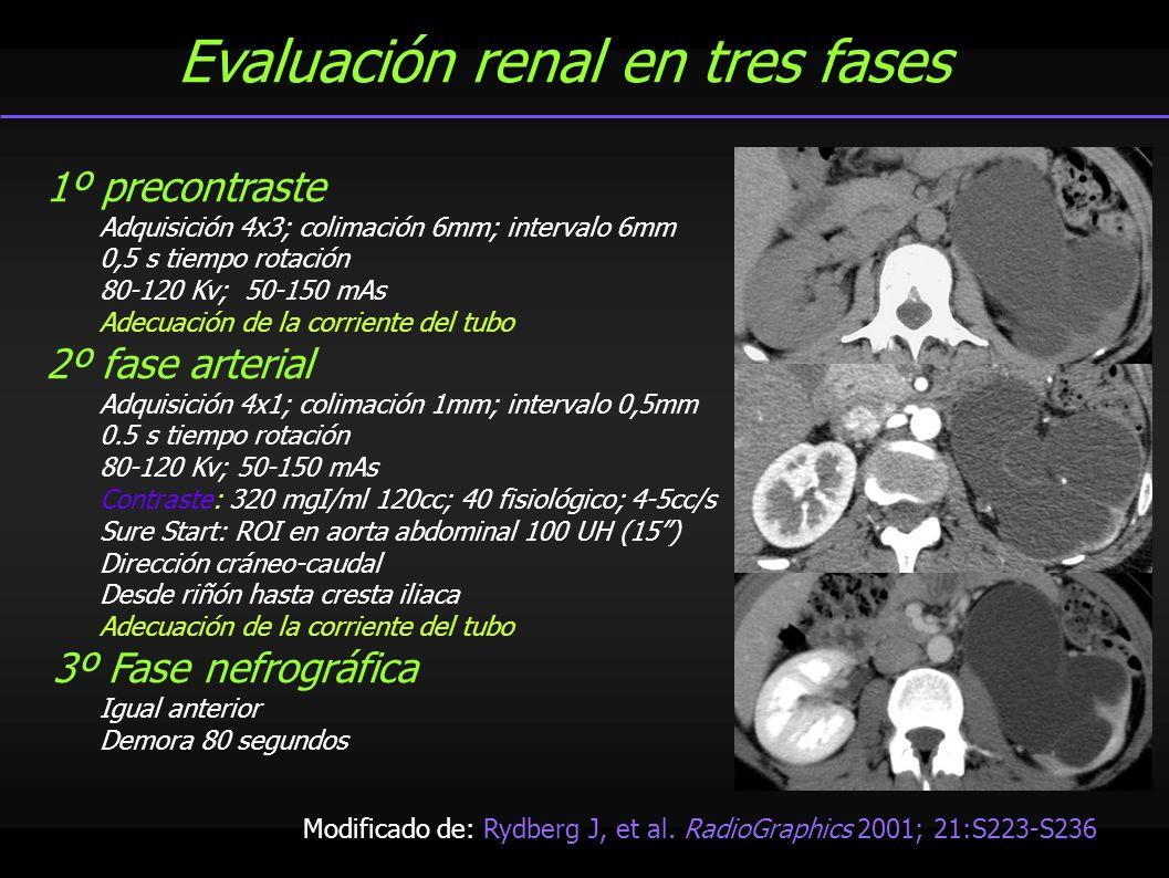 Evaluación renal en tres fases 1º precontraste Adquisición 4x3; colimación 6mm; intervalo 6mm 0,5 s tiempo rotación 80-120 Kv; 50-150 mAs Adecuación d