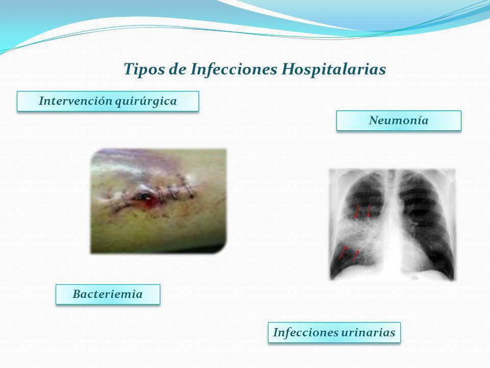 Infecciones urinarias Intervención quirúrgica Neumonía Bacteriemia Tipos de Infecciones Hospitalarias