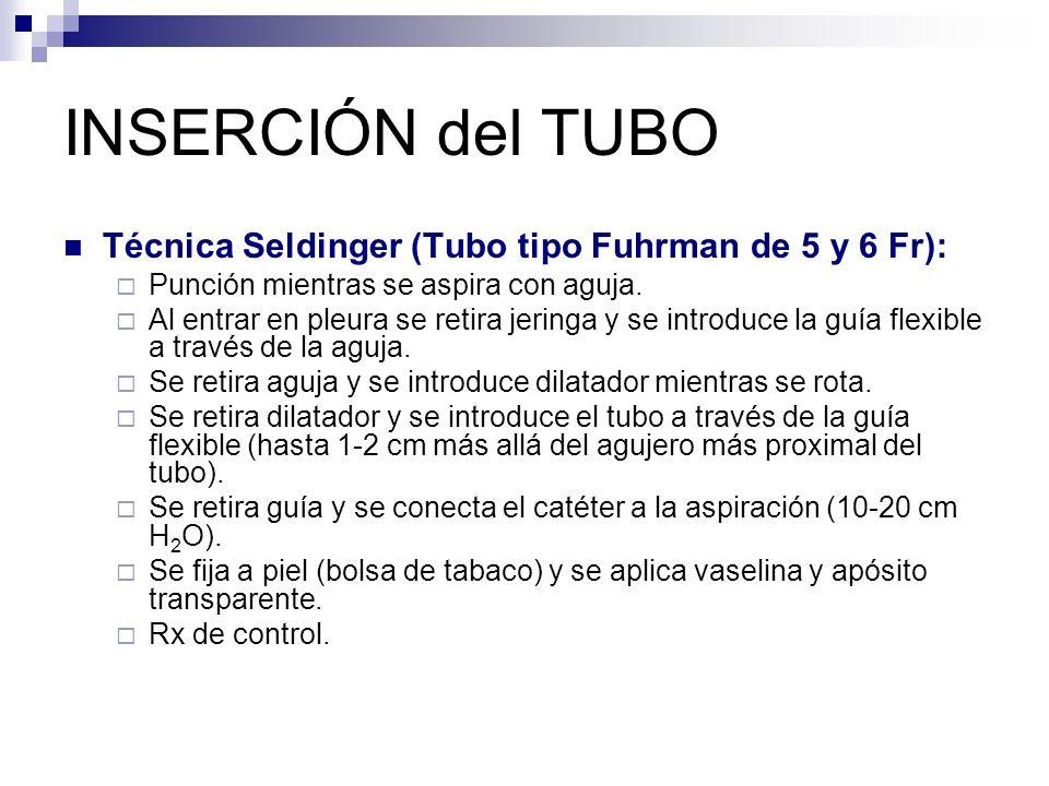 INSERCIÓN del TUBO Técnica Seldinger (Tubo tipo Fuhrman de 5 y 6 Fr): Punción mientras se aspira con aguja.