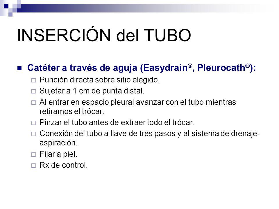 INSERCIÓN del TUBO Catéter a través de aguja (Easydrain ®, Pleurocath ® ): Punción directa sobre sitio elegido.