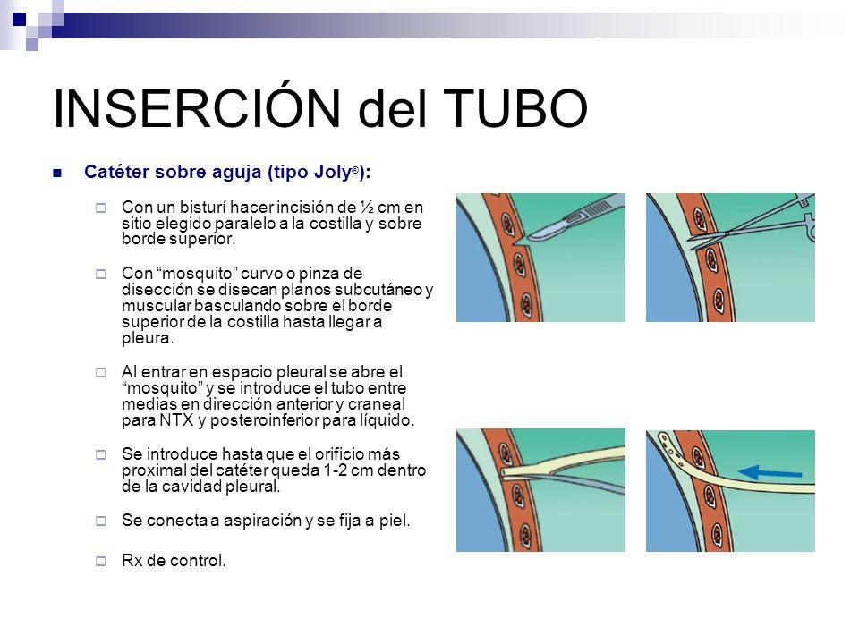 INSERCIÓN del TUBO Catéter sobre aguja (tipo Joly ® ): Con un bisturí hacer incisión de ½ cm en sitio elegido paralelo a la costilla y sobre borde superior.