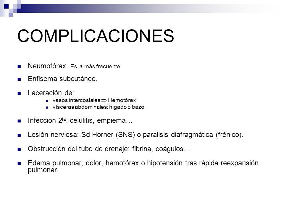 COMPLICACIONES Neumotórax.Es la más frecuente. Enfisema subcutáneo.